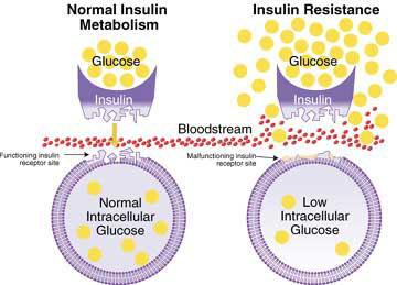 Insulin resistance, are you insulin resistant? women