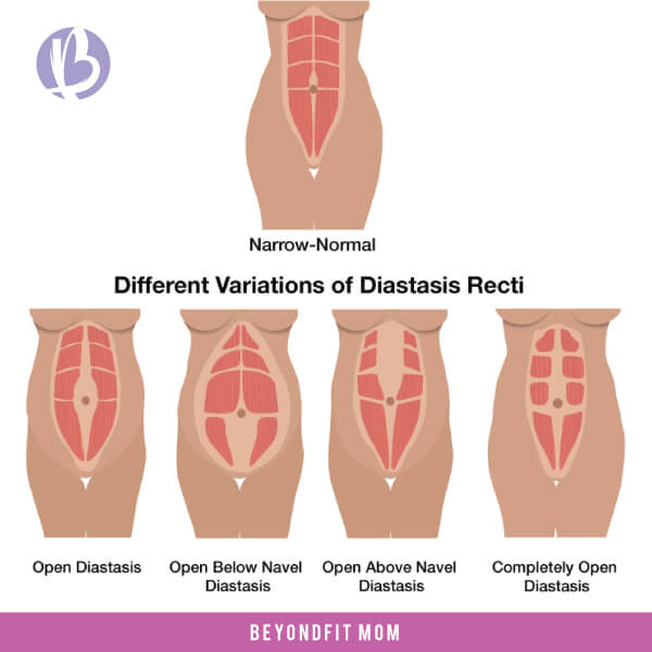 How Big Of A Gap Is Diastasis Recti?