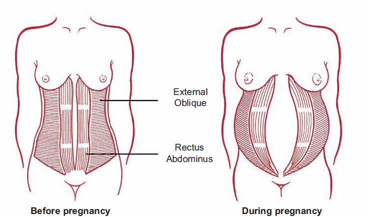 diastasis recti pregnancy