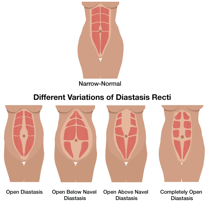 Different Variations of Diastasis Recti