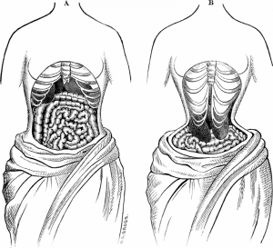 are postpartum girdles bad for you